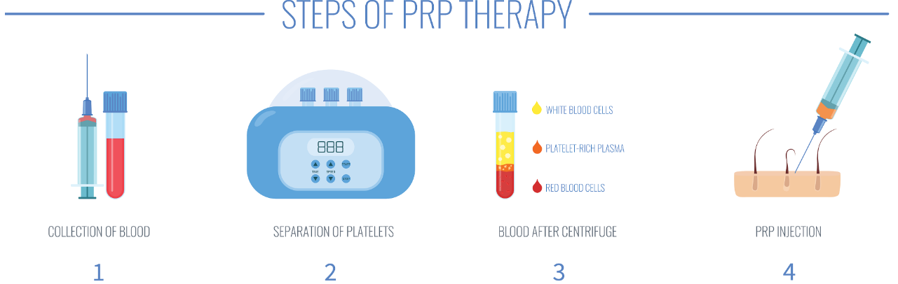 Step by step process of PRP hair regeneration injections