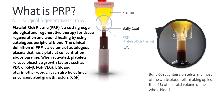 PRP nonsurgical hair growth therapy
